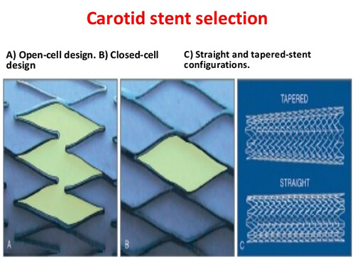 Carotid Stent Selection