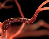 Ενδοφλέβια θρομβόλυση